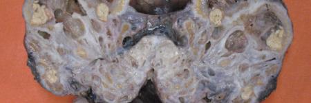 Patologia Cirúrgica: Considerações Gerais