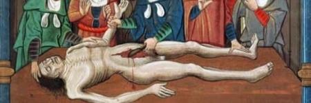 A História da Autópsia