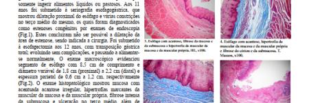 Estenose congênita esofagiana