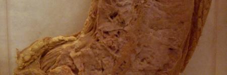 66. Osteossarcoma
