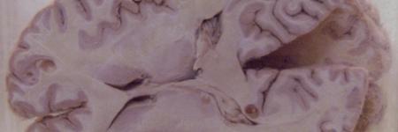 72. Cisticercose Cerebral