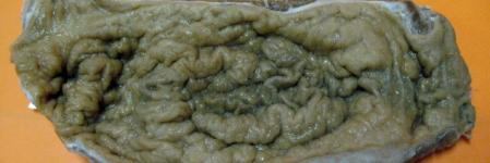 16. Adenocarcinoma de Estômago, Tipo Difuso