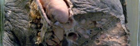 24. Tumor Carcinoide Brônquico