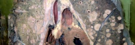 26. Carcinomatose Metastática Pulmonar