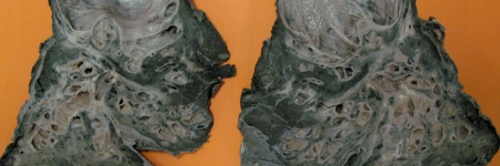 41 e 42. Tuberculose Pulmonar com Cavernas Saneadas e Bronquiectasias e Redução Pulmonar