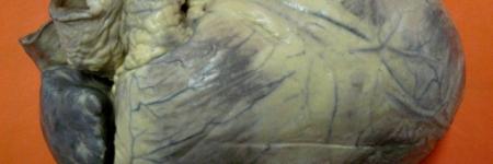 45. Cardiomegalia