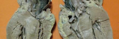 50. Hematoma Dissecante de Aorta Ascendente (Síndrome de Marfan)
