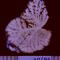 Atrofias - Encefalopatias